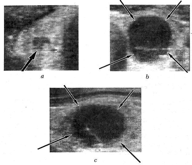 Patient P., 50 years old. Thyroid gland sonograms