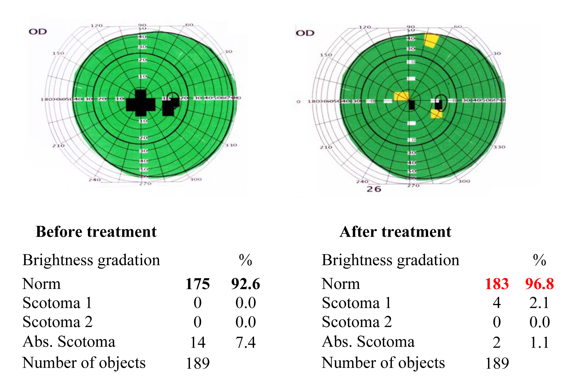 Results of the visual functions tests before and after the treatment course 4